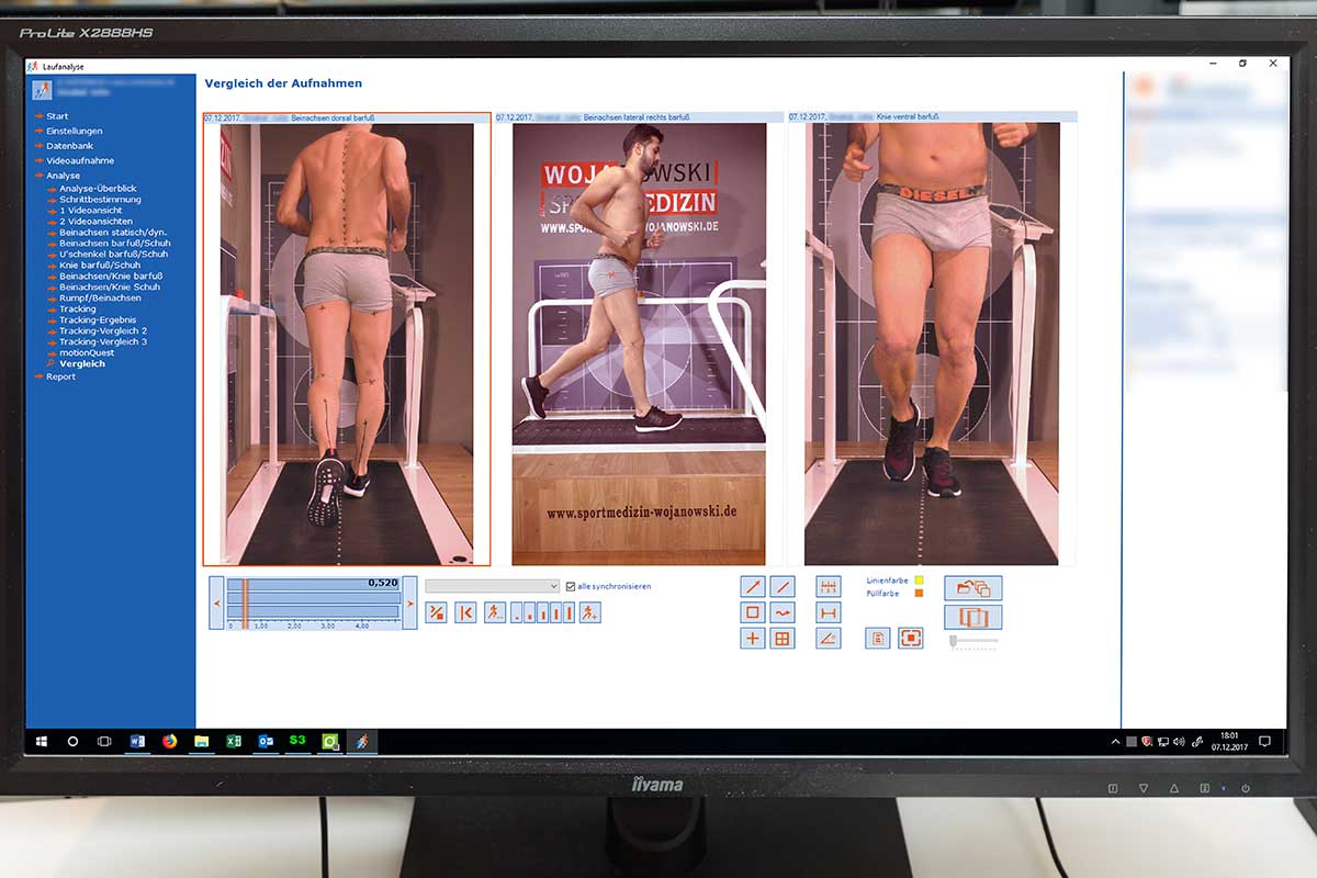 Bewegungsanalyse Bewertung