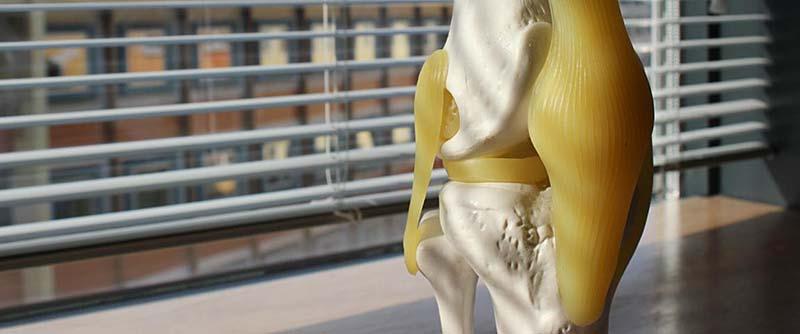 Knie Knochen